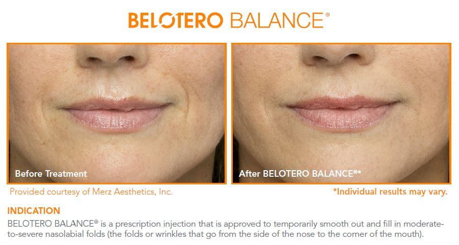 smoother nasolabial folds after Belotero injection