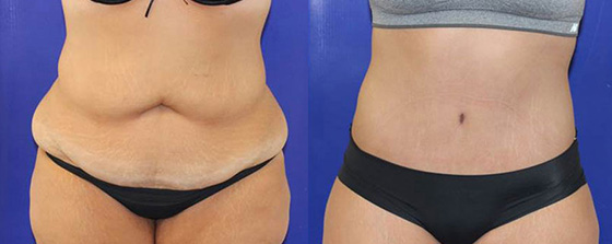 Circumferential Abdominoplasty Before & After on a female patient