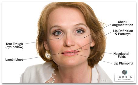 Juvederm Treatment Diagram for the face