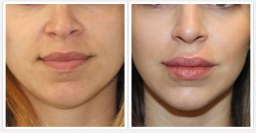fuller lips after injectable treatment