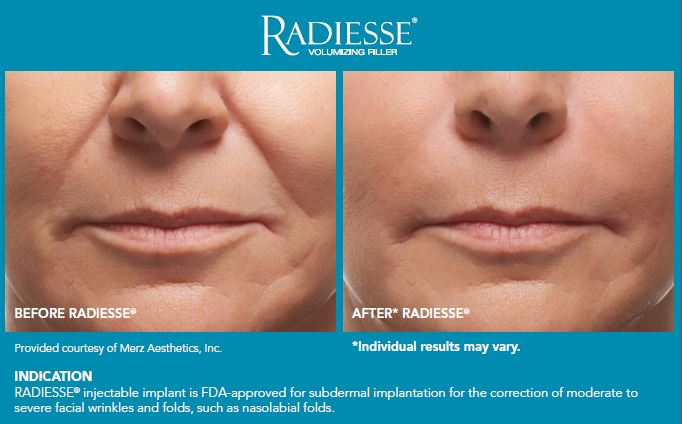 Radiesse on patient Before and After