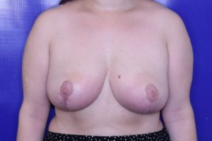 breast reduction case 2351