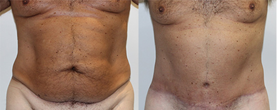 circumferential tummy tuck before and after on a male patient