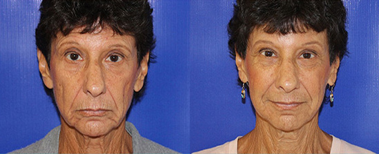 eyebrow lift before and after on a female patient in Boca Raton