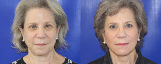 a female patient's results after a facelift from Dr. Farber