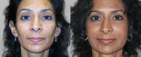 woman with fuller cheeks, jawline, and neck after a liquid facelift