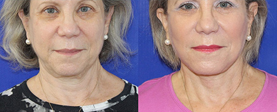 neck lift on a middle-aged female patient before and after