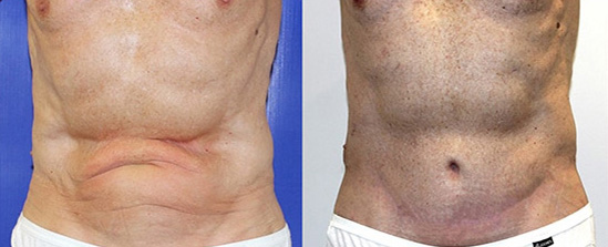 Male Tummy Tuck Before and After