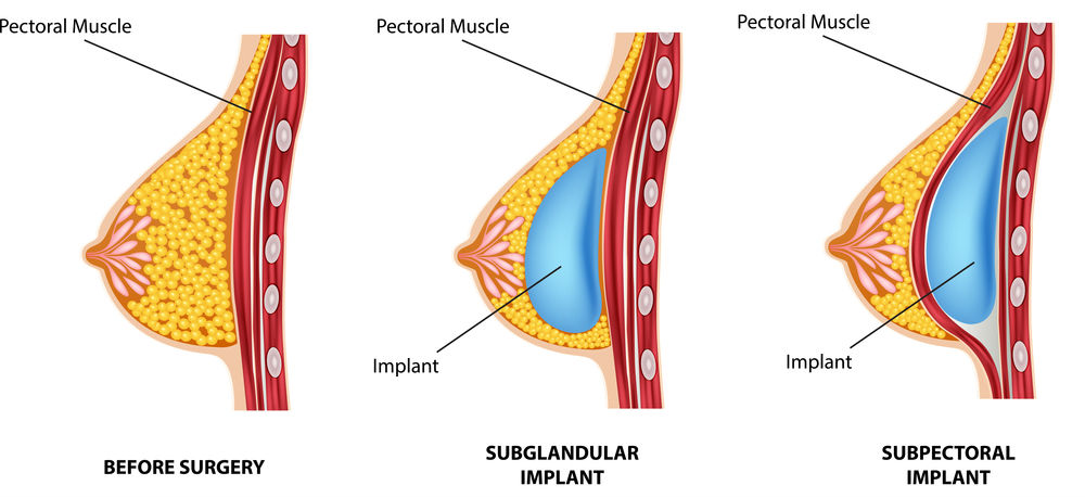 image showing comparison of breast implant techniques (subglandular vs. subpectoral)