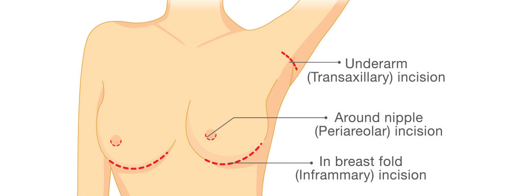 diagram showing breast implant incision points (underarm, around nipple, and in breast fold)