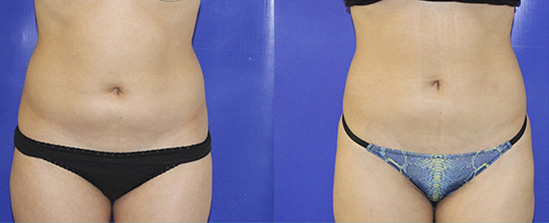 female liposuction before and after