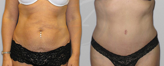 tummy tuck on a patient before and after